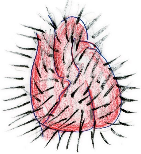 毛が生えた心臓