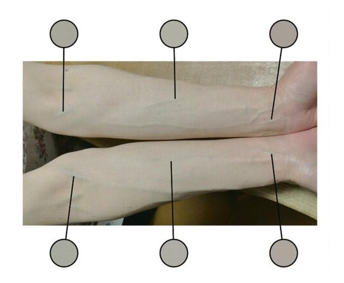 腕の静脈の色