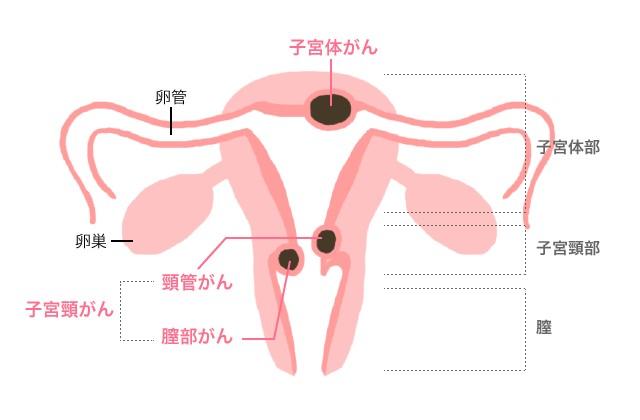 子宮頸がん・子宮体がん