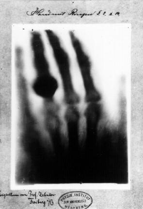 レントゲンが撮影した手の透視画像